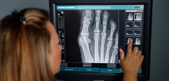 Digital radiography